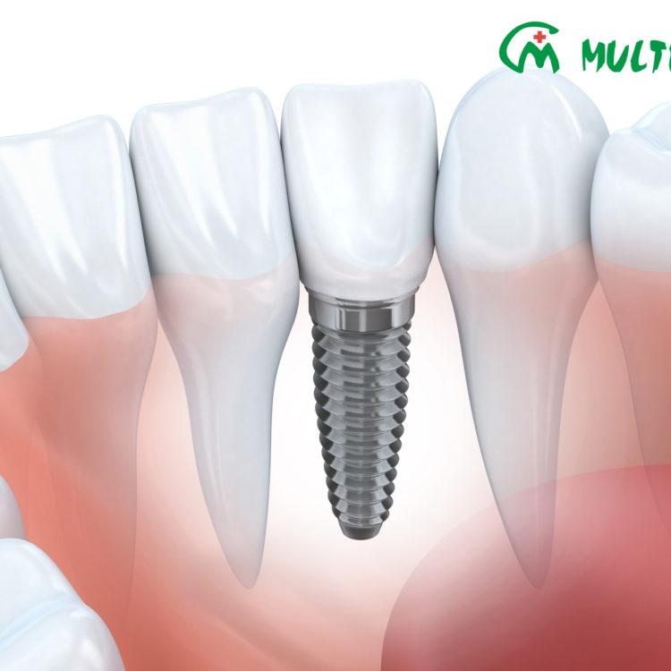Implanty Implantologia Multimed